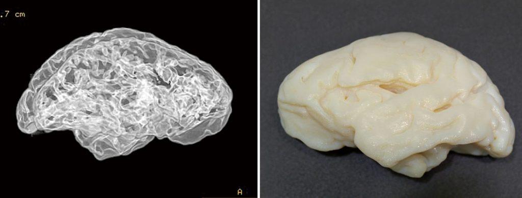 cerebros de la Pedraja