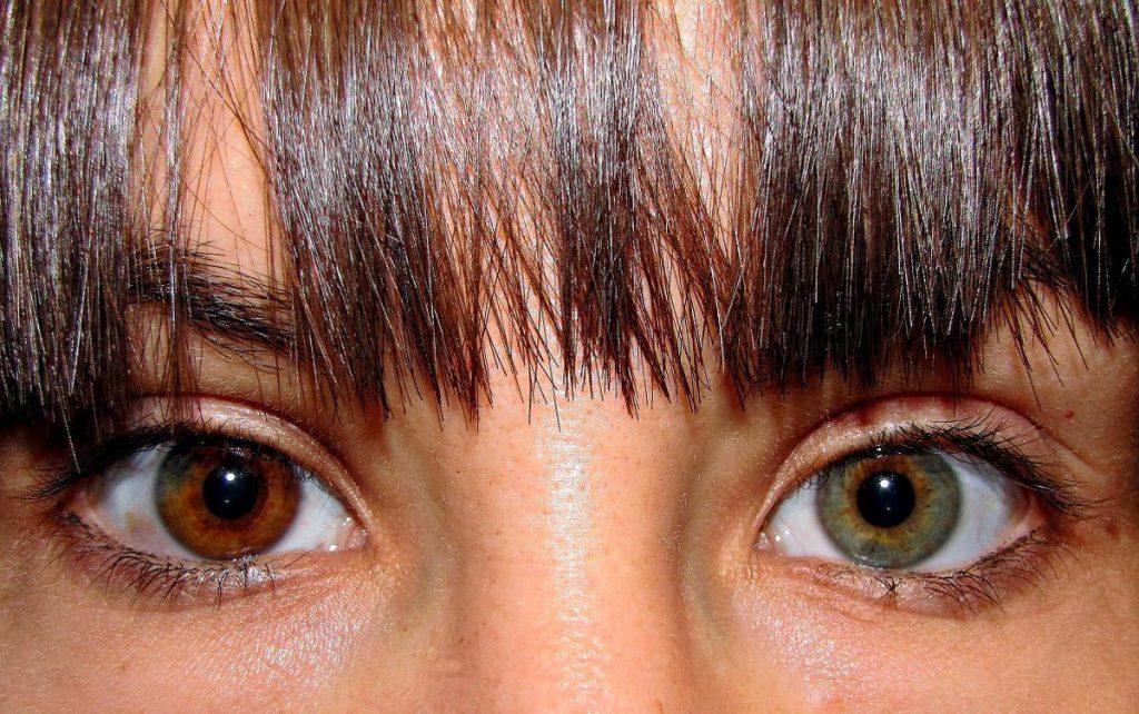 iris ojos